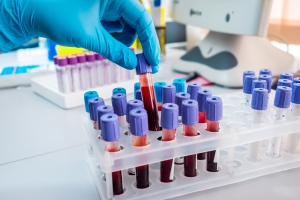 Can we detect breast cancer with a blood test or liquid biopsy?