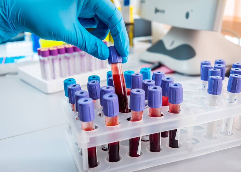 Developing a blood test to detect or treat breast cancer